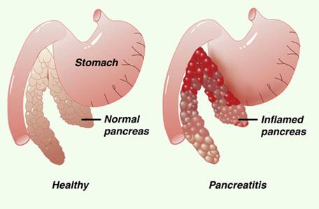 Острый приступ панкреатита симптомы